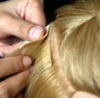 Mikro Bant Saç Kaynak